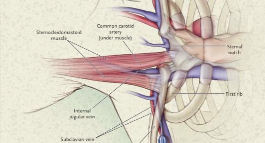 Prevenir las complicaciones del catéter venoso central (CVC)